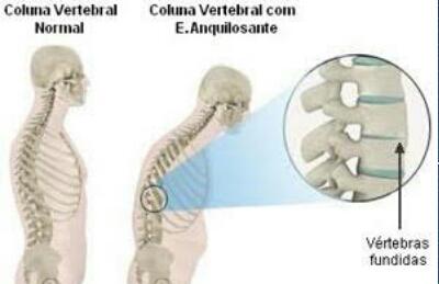 """alt=""""Dor na coluna pode ser espondilite, doença que acomete jovens"""""""