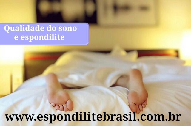 """alt=""""Qualidade do sono e fatores associados em espondilite anquilosante"""""""