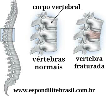 """alt=""""Osteoporose e fraturas vertebrais em espondilite"""""""