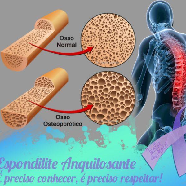 Novos Estudos – Estudo sugere que doenças osteometabólicas podem ser mascaradas na espondilite