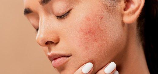 Acne Pimples Spots Zits Skin  - jmexclusives / Pixabay