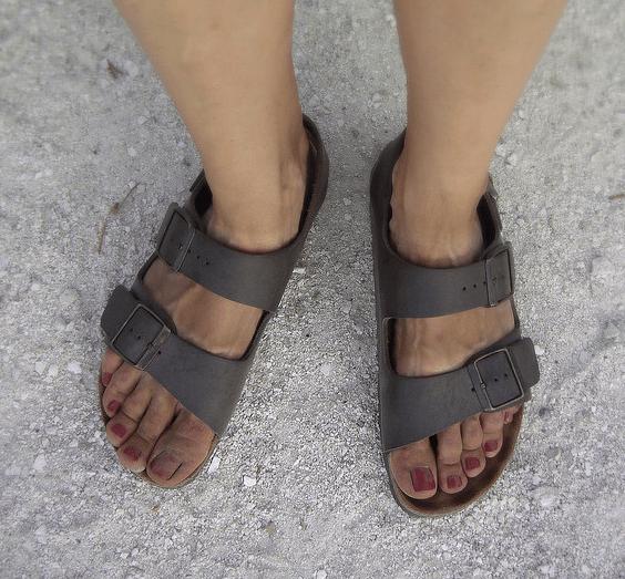 Your Feet Look Disgusting