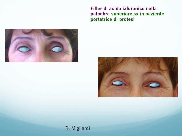 filler acido ialuronico 3