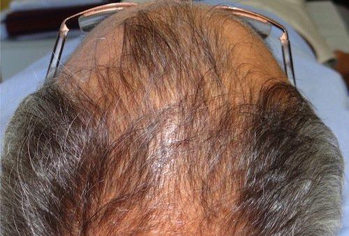 prp capelli risultati 5