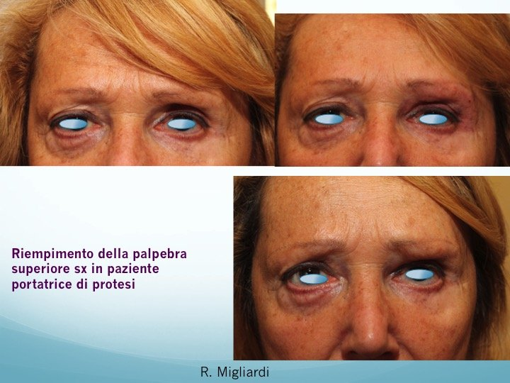 filler acido ialuronico 6