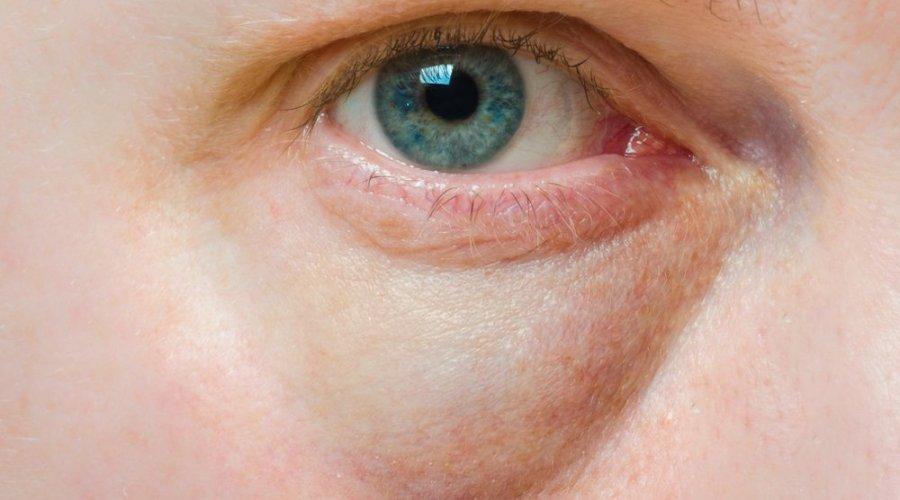 trattamento del solco lacrimale