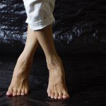 Restless Leg Syndrome Homeopathy