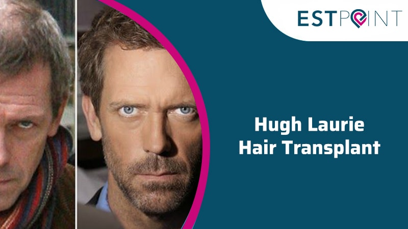 Hugh Laurie Hair Transplantation