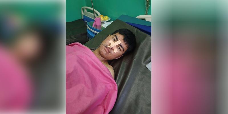 علی، از زخمیان حمله انتحاری بر مرکز آموزشی کوثر دانش