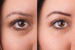 Castor Oil For Wrinkles Is It Good For Face Wrinkles
