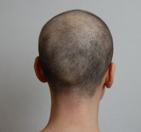 hair regrowth after chemo pictures of post chemotherapy growing hair