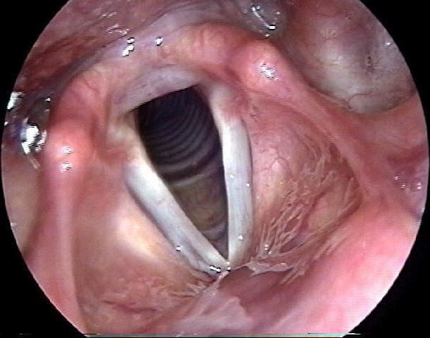 Normal_Larynx_1