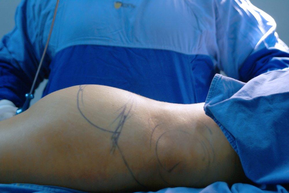 liposuzione sala operatoria