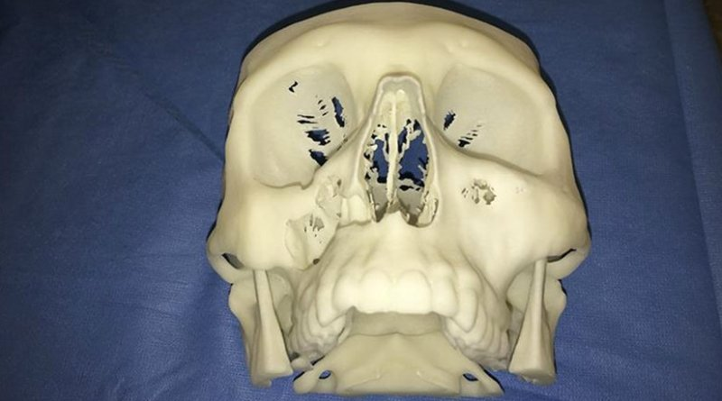 In an eight-hour operation on an adult patient, Dr. Daniel Borsuk carried out a facial reconstruction using virtual surgery and 3D models, removing a vascularized piece of pelvic bone and reshaping it to adapt it to the rest of the face before transplanting it through the inside of the mouth, with no scars left at all. This image shows a 3D reconstruction of the patient's skull.