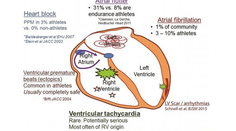 Increased incidence of arrhythmias in the athlete's heart. There is a well demonstrated association between atrial fibrillation and/or flutter and endurance exercise training. There is also an increase in premature ventricular beats, although this tends to be benign in most athletes. Although there is some speculation that extreme exercise might cause serious arrhythmias in some cases, these events remain very uncommon. PPM, permanent pacemaker; RV, right ventricular.