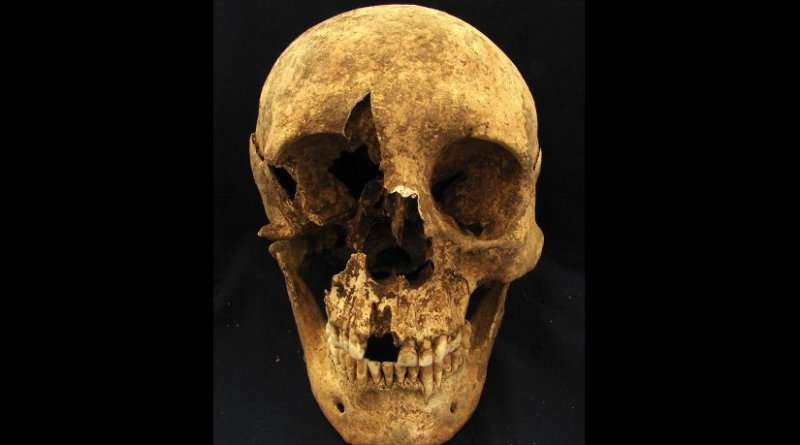 Skull of skeleton T15, a 35- to 50-year-old male who was buried in a cemetery in the modern neighborhood of Casal Bertone, Rome, Italy. Isotope ratios suggest he may have been born near the Alps. Credit: Kristina Killgrove