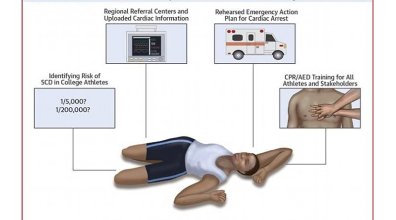The Journal of the American College of Cardiology today published a consensus statement that establishes guidance for conducting pre-participation screenings of college athletes and encourages emergency action plans for quickly responding to sudden cardiac arrest. Credit The Journal of the American College of Cardiology