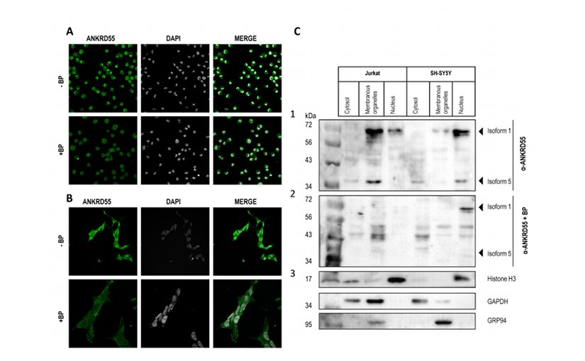 Intracellular localization of ANKRD55 in Jurkat, SH-SY5Y and PMA-treated U937 cells.