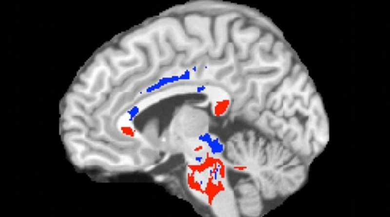 This image of a concussion patient's brain shows low FA areas (red) probably signifying injured white matter, plus high FA areas (blue) perhaps indicating more efficient white-matter connections compensating for concussion damage. A large amount of high FA predicts recovery from concussion. Credit Photo reproduced from Strauss SB, Kim N, Branch CA. Bidirectional Changes in Anisotropy Are Associated with Outcomes in Mild Traumatic Brain Injury. AJNR Am J Neuroradiol 2016 Jun 9.