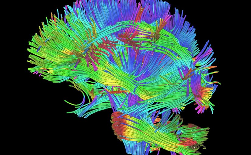 This is an example of a white matter rendering from DTI and DKI scans. The diffusion metrics used in this study were derived from DTI and DKI scans. The metrics give measures of the integrity of these white matter fibers. Credit Radiological Society of North America