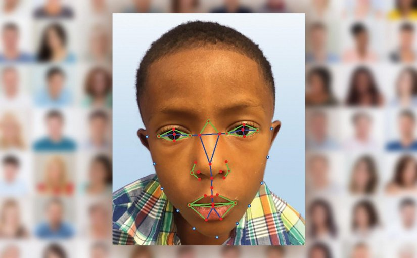 A young boy undergoes facial recognition software for a possible diagnosis with DiGeorge syndrome, a rare disease. Credit Paul Kruszka, et al.