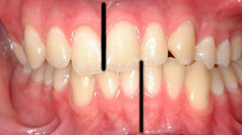 This is an example of a crooked bite which led to a large shift between the midlines (black lines added to image) of the upper and lower incisors. Credit Courtesy of Philippe Hujoel