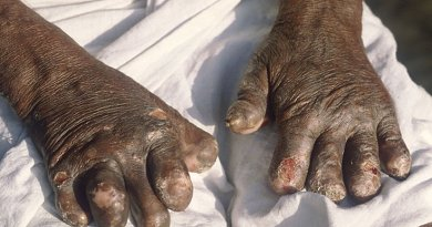 Hands deformed by leprosy. Photo by B.jehle, Wikipedia Commons.