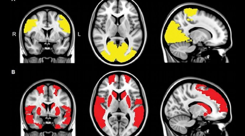 MR images show reduced regional functional connectivity in, A, Parkinson's disease (PD) patients and, B, exclusively in PD + visual hallucinations (VH) patients. Regional functional connectivity analysis revealed lower functional connectivity in PD + VH as well as PD - VH patients compared with control participants in paracentral and occipital regions (yellow areas in A; P < .05, corrected for multiple comparisons). Functional connectivity in frontal, temporal, and subcortical regions was exclusively lower in patients with PD + VH compared with control participants (red areas in B; P < .05, corrected for multiple comparisons). Credit Radiological Society of North America