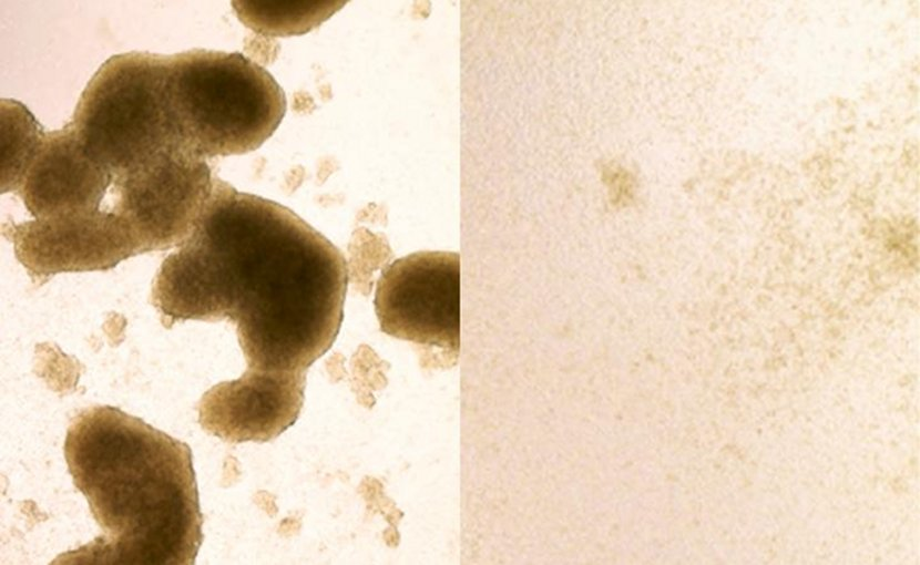 Brain cancer stem cells (left) are killed by Zika virus infection (image at right shows cells after Zika treatment). A new study shows that the virus, known for killing cells in the brains of developing fetuses, could be redirected to destroy the kind of brain cancer cells that are most likely to be resistant to treatment. Credit Zhe Zhu