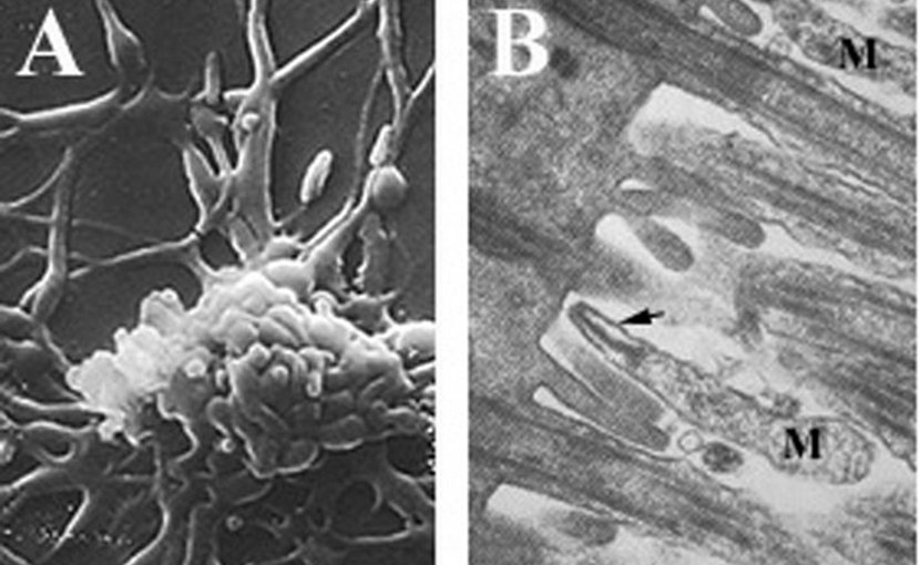 A) Filamentous Mycoplasma pneumoniae cells B) M. pneumoniae cells (M) attached to ciliated mucosal cells by the attachment organelle (indicated by arrow). Photo Credit: Rottem et al., Wikipedia Commons.