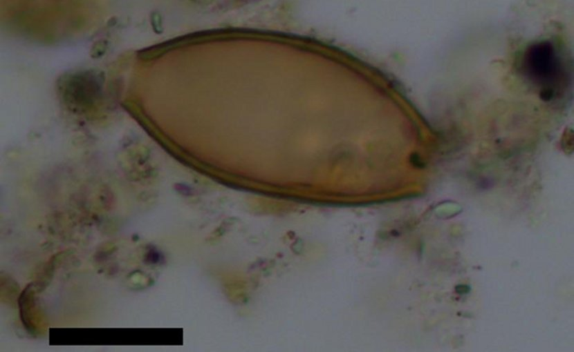 These are eggs of whipworm intestinal parasites from ancient Greek samples analysed in the study. Credit Reproduced with the permission of Elsevier publishing.