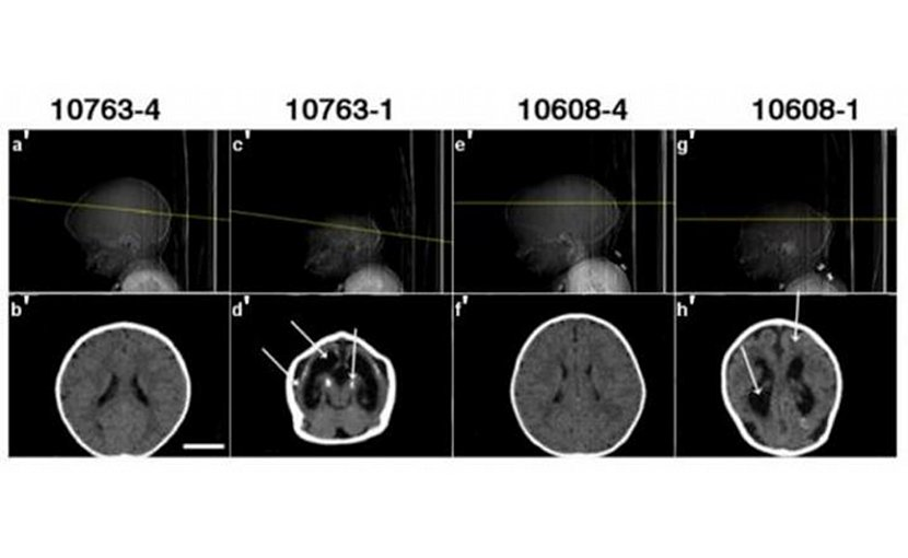 Computed tomography scans from two pairs of twins participant in the study show typical abnormalities (second and forth images) associated with congenital Zika syndrome and microcephaly. Credit HUG-Cell