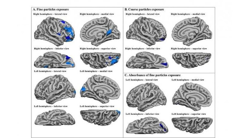 This image shows the different brain regions affected by fine and coarse particles. Credit ISGlobal / Biological psychiatry
