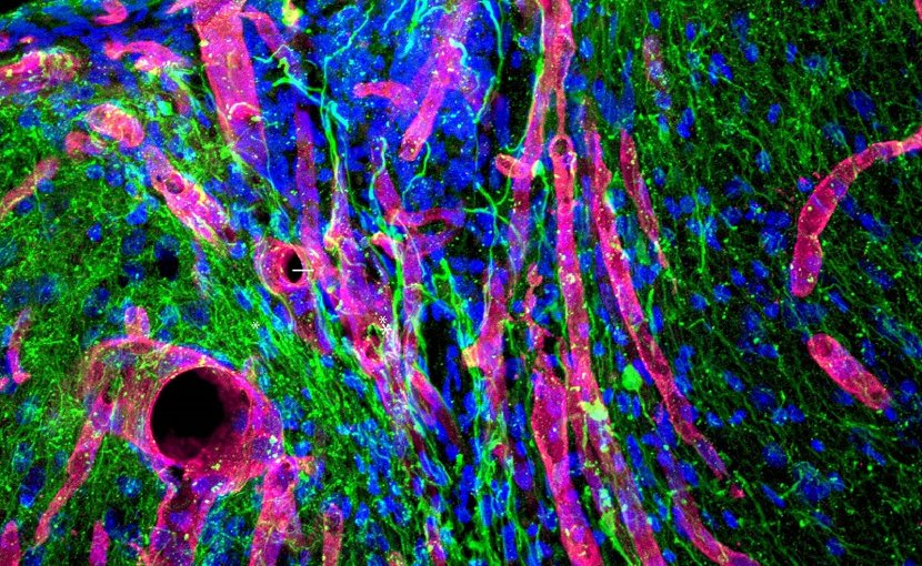 This is a photomicrograph of tissue that has grown into the stroke cavity in the stroke-healing gel. The red tubes are blood vessels. They are growing into the site of the stroke in the center of the image. The green filaments are axons. These grow along the blood vessels as they enter the gel and infarct area. The blue ovoids are cell nuclei in the tissue. Credit UCLA Health