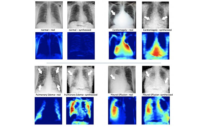 On the left of each quadrant is a real X-ray image of a patient's chest and beside it, the syntheisized X-ray formulated by the DCGAN. Under the X-ray images are corresponding heatmaps, which is how the machine learning system sees the images. Credit Hojjat Salehinejad/MIMLab