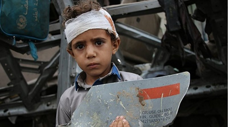 Photo by Yemeni photographer Ahmad Algohbarya, of a young survivor of August 9 Saudi-led attack on his school bus, with fragment of U.S. made missile
