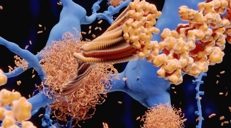 Alzheimer's disease: the amyloid-beta peptide accumulates to amyloid fibrils that build up dense amyloid plaques. 3d rendering Credit Royalty-free stock photo ID: 1157052994 Alzheimer's disease: the amyloid-beta peptide accumulates to amyloid fibrils that build up dense amyloid plaques. 3d rendering - Image