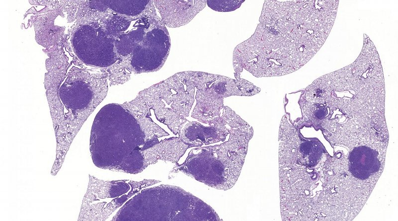 Image of lung cancer shows normal lung (light purple) and tumors (dark purple). Inactivation of SIK1 and SIK3 leads to tumor growth and inflammation, revealing for the first time that SIK kinases mediate key functions of LKB1 in preventing lung cancer. Credit Salk Institute