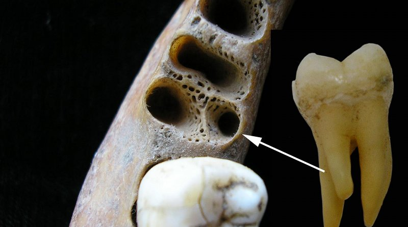 The three-rooted lower molar anomaly in a recent Asian individual. Left: tooth sockets showing position of accessory root; right: three-rooted lower first molar tooth. Credit Christine Lee