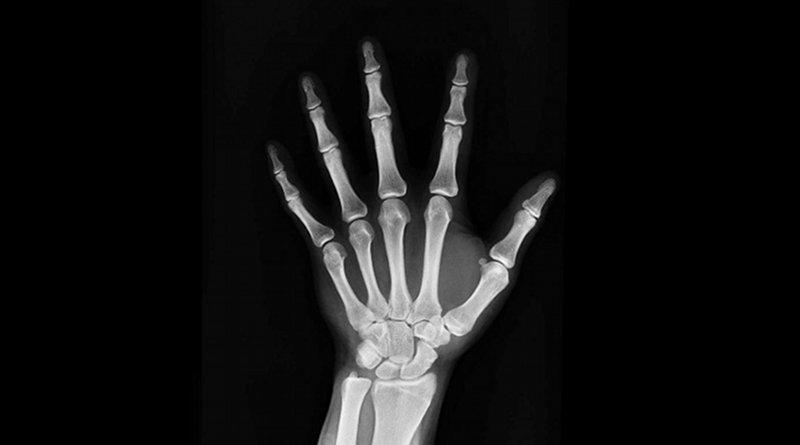 15,000 Spaniards may unknowingly have hypophosphatasia bone disease. CREDIT UGR Divulga