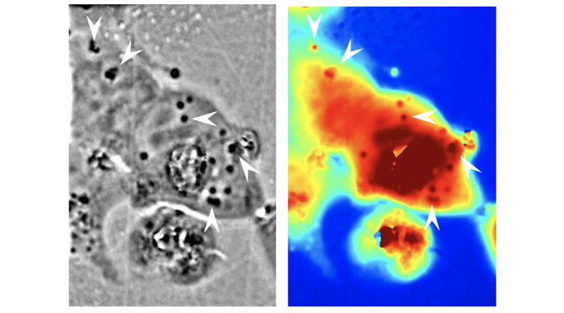 The black and white phase microscope image above helped UCI researchers identify where the squid reflectin protein nanostructures were present in human cells (dark regions, with some indicated by white arrows). The panel in color shows the associated pathlength for light traveling through a given area (red corresponds to longer pathlengths and blue corresponds to shorter pathlengths). CREDIT: Atouli Chatterjee / UC