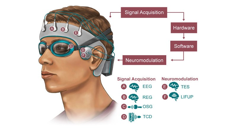 Rice University engineers, in collaboration with Houston Methodist and Baylor College of Medicine, are developing a noninvasive skullcap to better understand how the brain disposes of metabolic waste while the wearer sleeps. Signals will be acquired will be through electroencephalogram (EEG), rheoencephalography (REG), orbital sonography (OSG) and transcranial doppler (TCD), with modulation through transcranial/transcutaneous brain and nerve electrical simulations (TES) and low-intensity focused ultrasound pulses (LIFUP). CREDIT: NeuroEngineering Initiative/Rice University