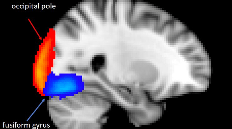Illustration: fMRI (functional Magnetic Resonance Image) of brain showing the location of areas of reduced activity. CREDIT: Liliana Capitão