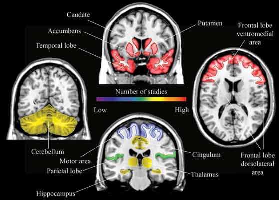 Image result for neuroimaging antipsychotic medication bentham
