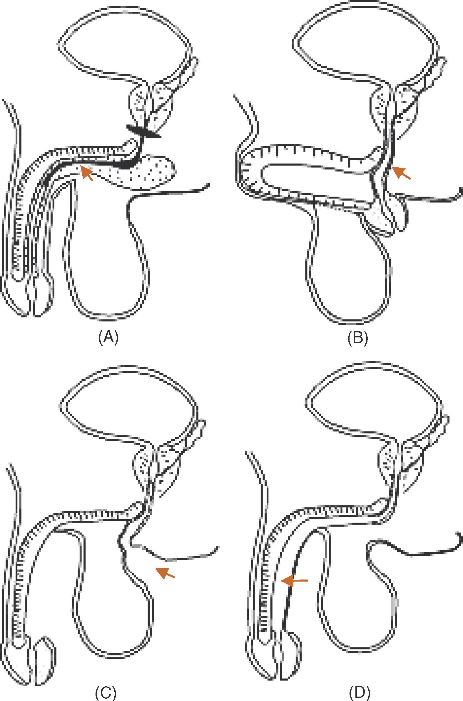 Staged Pendulous Prostatic Anastomotic Urethroplasty