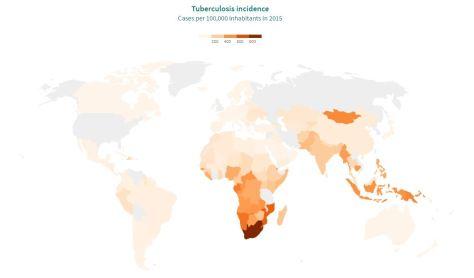 Tuberculosis incidence