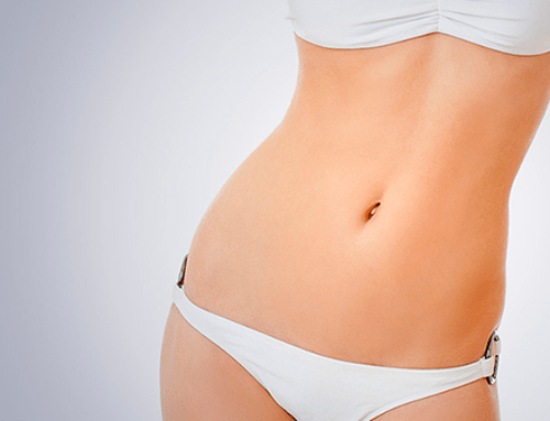 Post liposuction cannula scar laser removal