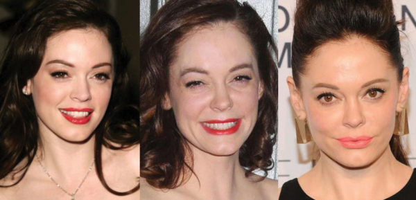 Rose McGowan Plastic Surgery Before and After Pictures 2021