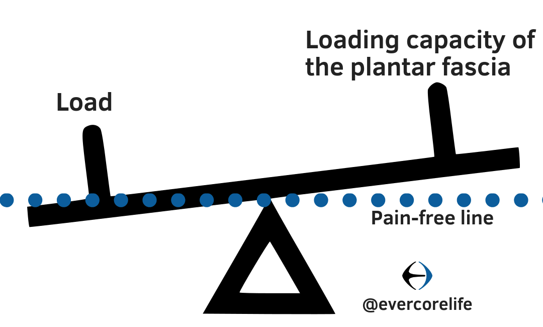 loading graphic for plantar fasciitis crop