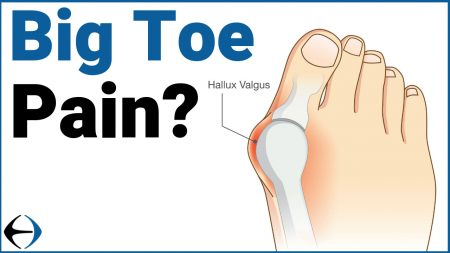 big toe pain thumbnail